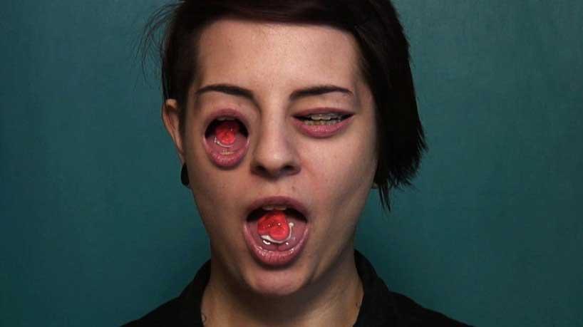 alva bernadine: born with three mouths